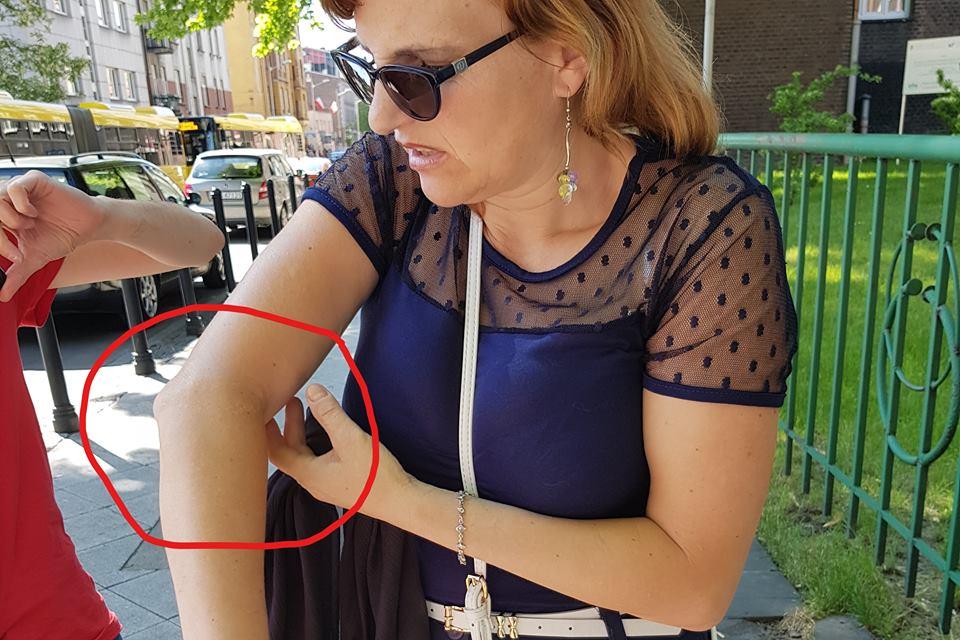 Adam Mazguła: PiS-bandyci złamali rękę kobiecie i oskarżyli ofiarę