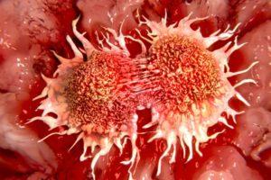 W Europie spada liczba zgonów na raka. Z wyjątkiem Polski